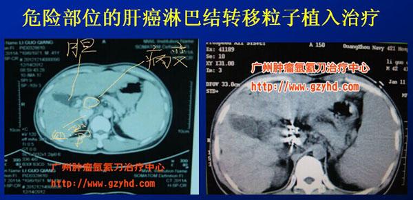 广东治疗肝癌